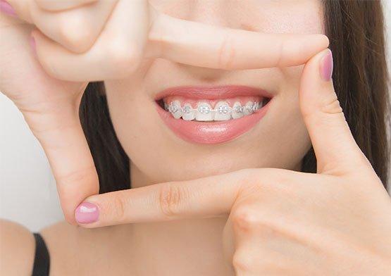 benefits-of-orthodontics-leichhardt
