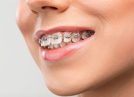 braces-leichhardt