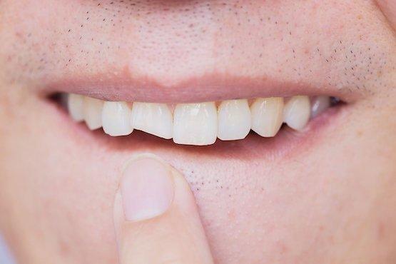broken-tooth-blurb-leichhardt