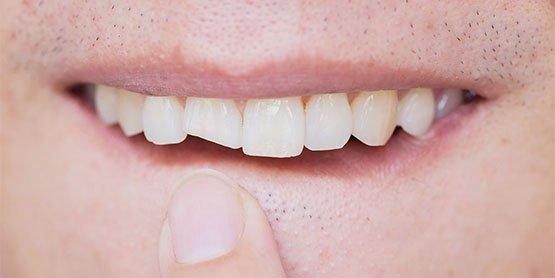 broken-tooth-leichhardt