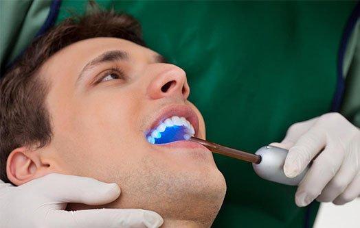 dental-abscess-leichhardt