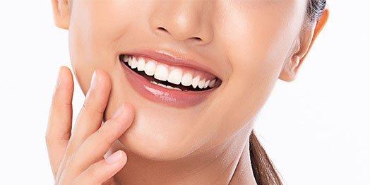 dental-bonding-leichhardt