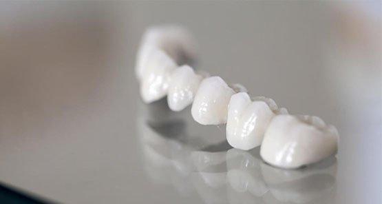 dental-bridges-blurb-leichhardt