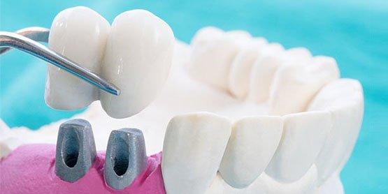 dental-crowns-blurb-leichhardt