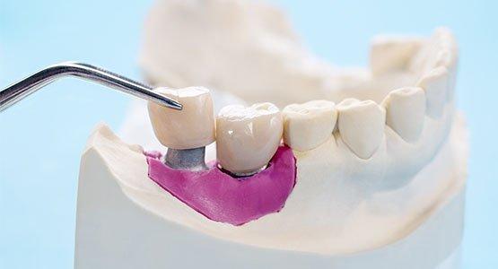 dental crowns blurb leichhardt