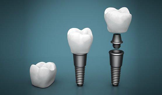 dental-implants-leichhardt