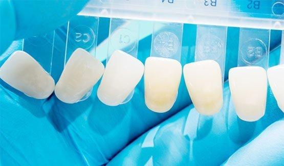 dental-veneers-leichhardt