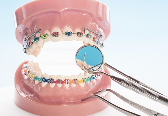 orthodontics-leichhardt