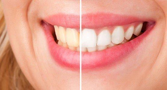 teeth-whitening-leichhardt-banner