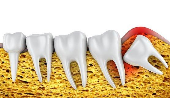 wisdom-tooth-extraction-leichhardt